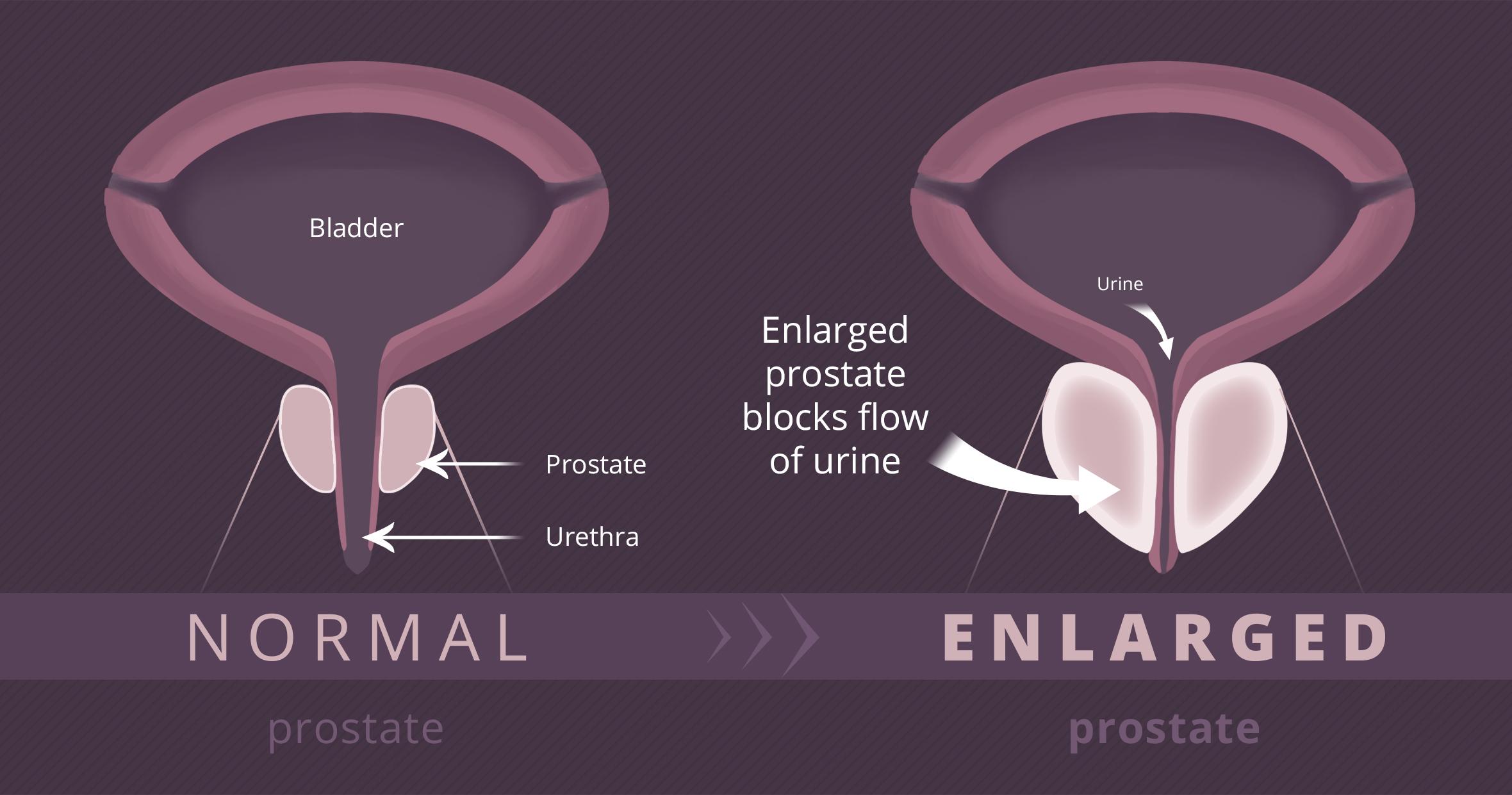 Benign Prostatic Hyperplasia  Bph