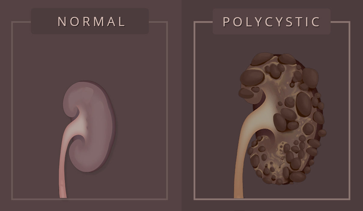 Types of PKD